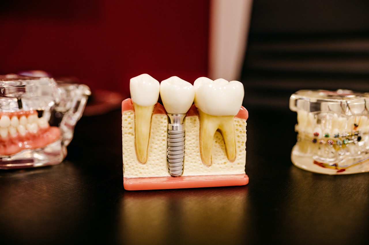wstawianie implantu zęba